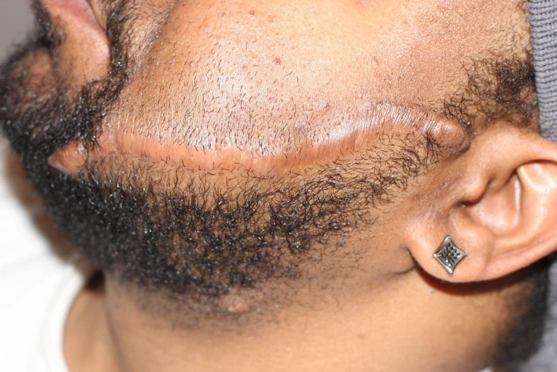 Facial Keloid
