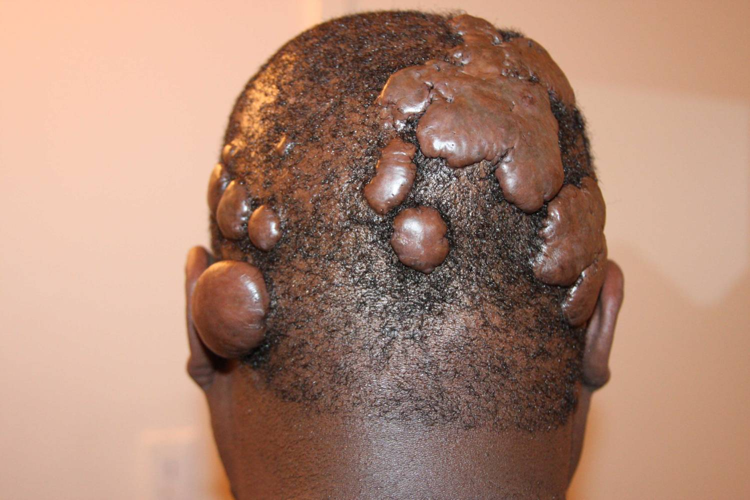 Multiple scalp keloids tumors