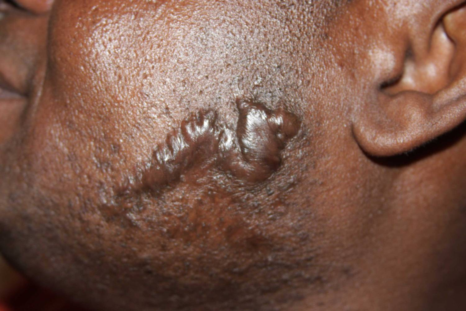 Recurrent keloid after surgical removal