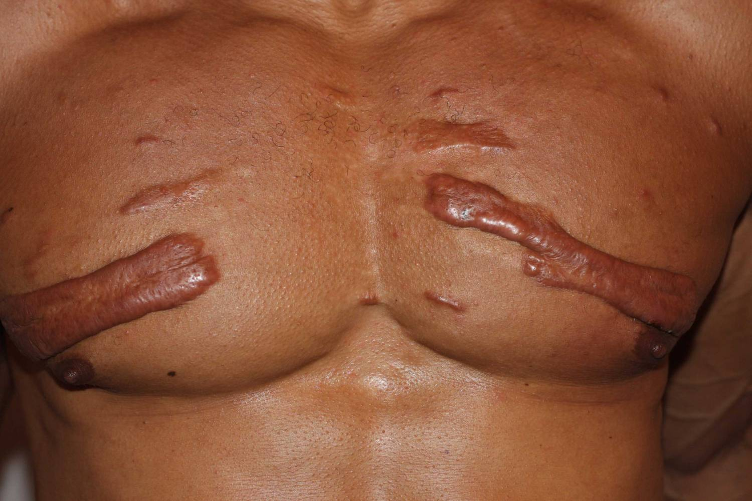 Mixed variety keloids in chest wall