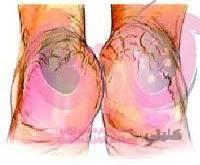 تشقق القدمين علاج واسباب