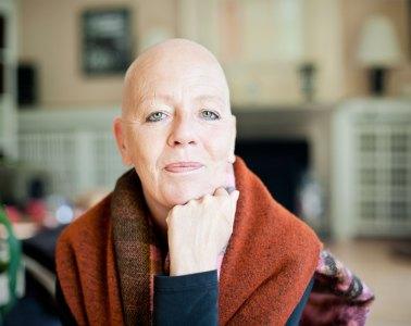 Portrait, Jenny Latz, kreisrunder Haarausfall