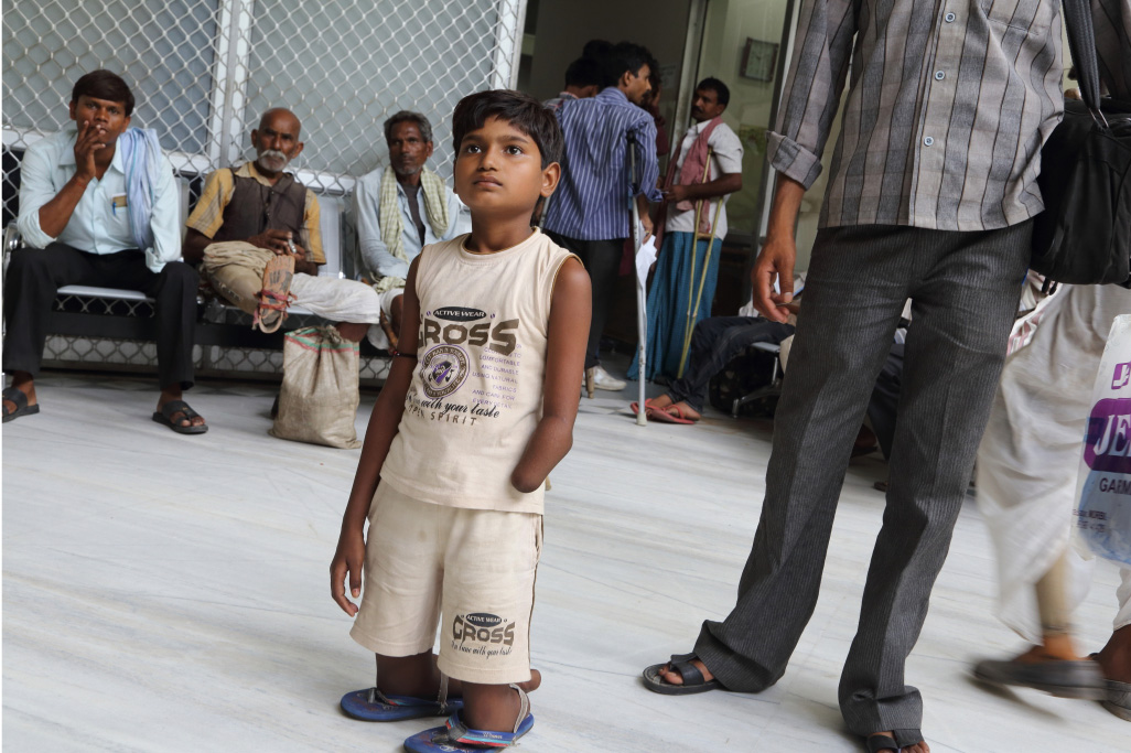 A child waits for his turn to see a doctor and get registered for a set of artificial limbs at the hospital.