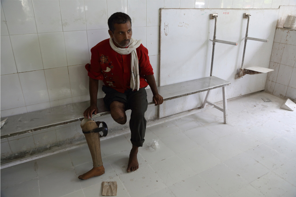 A man waits for fitting of his replacement limb.