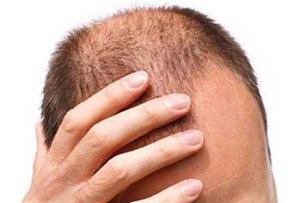 Perdi i capelli da giovane? Fertilità a rischio