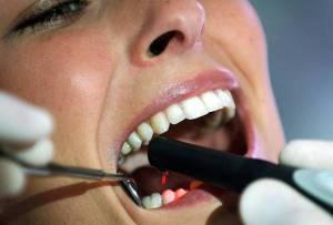 Carie addio: arriva dente antibatterico stampato in 3D