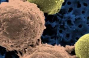 Tumori, bere alcolici (anche poco) aumenta il rischio di cancro