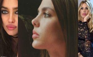 Charlotte Casiraghi, Irina Shayk, Ilary Blasi: labbra sensuali FOTO
