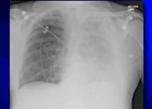 """Tumore ai polmoni si può """"fiutare"""" con naso elettronico"""