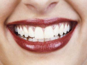 Diete e cibi, quali fanno male ai denti: persino le mele...