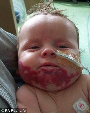 Voglia non lo fa respirare: neonato salvo con farmaco pressione alta 3