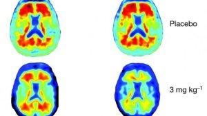 Alzheimer, un farmaco fa scomparire le placche nel cervello