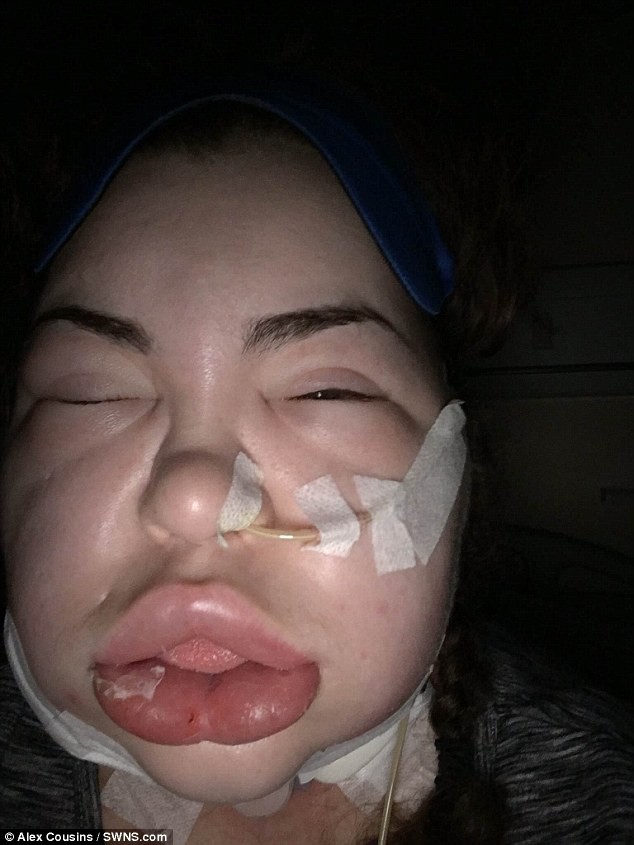 Credeva di avere mal di gola e invece era cancro3