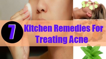 Kitchen Remedies For Treating Acne