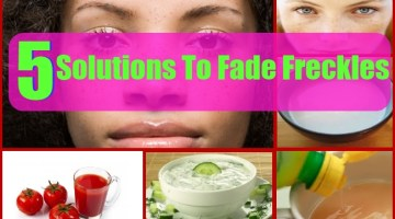 Solutions To Fade Freckles Naturally