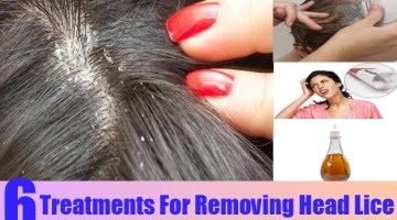 Treatments For Removing Head Lice