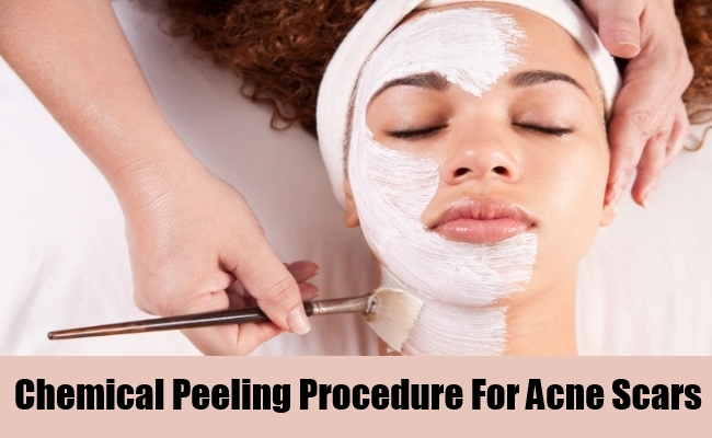 Chemical Peeling Procedures