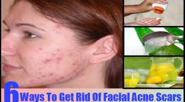 Ways To Get Rid Of Facial Acne Scars
