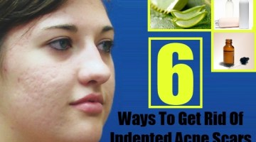 Ways To Get Rid Of Indented Acne Scars