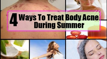 Ways To Treat Body Acne During Summer