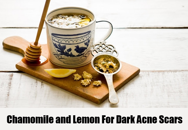 Chamomile and Lemon