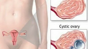 Reduce Cyst Pain