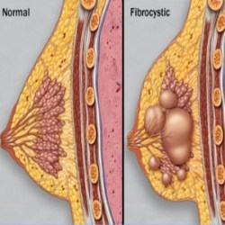 Treat Fibrocystic Breast