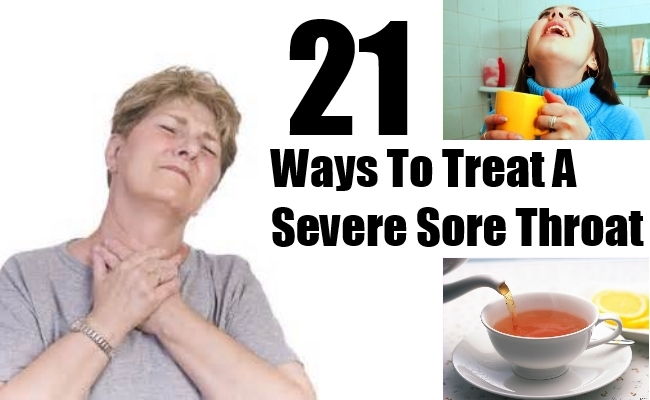 Ways To Treat A Severe Sore Throat