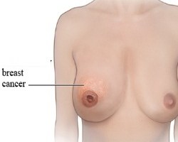 Various Types Of Breast Cancer