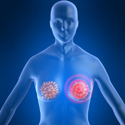 Top Five Remedies For Burning Sensation In Breast