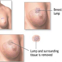 Causes Of Painful Lump In Breast