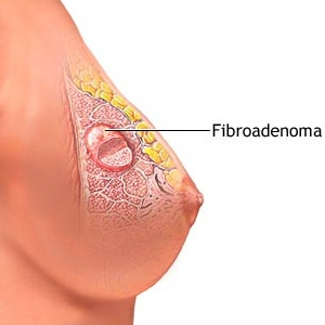 Causes And Symptoms Of Benign Breast Lumps