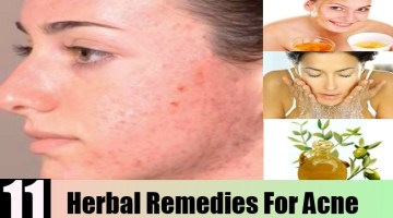 Herbal Remedies For Acne