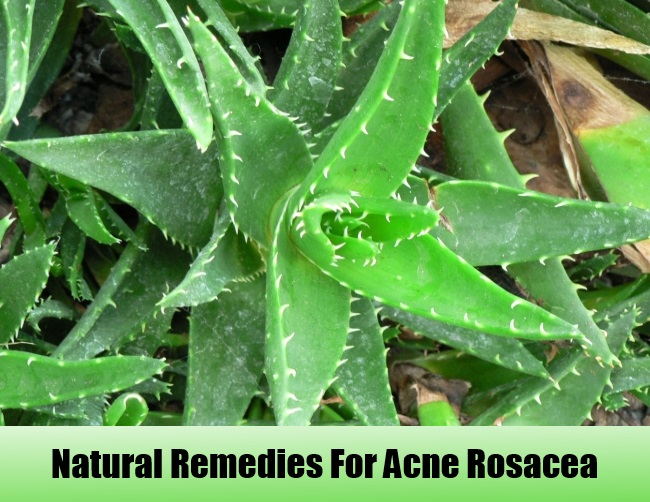 Natural-Remedies-for-Acne-Rosacea