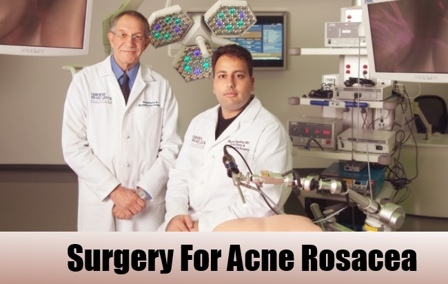 Surgery-to-treat-Acne-Rosacea