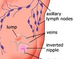 Top 11 Causes Of Breast Cancer