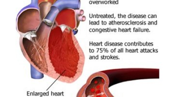 Common Causes Of High Blood Pressure