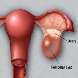ovarian cyst symptoms treatment