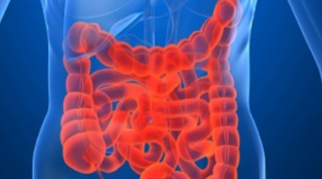 How To Adjust Your Diet For IBS