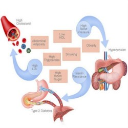 Connection Between High Blood Pressure And High Cholesterol