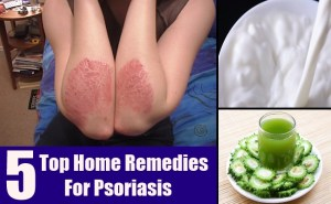 Top Home Remedies For Psoriasis