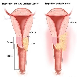 cervical cancer 2