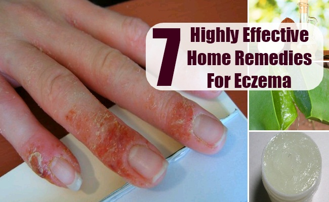 Highly effective home remedies for eczema natural treatments
