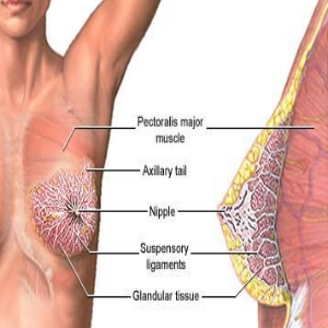 Breast Swelling In Fibrocystic Breast Disease