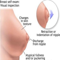 Breast Swelling