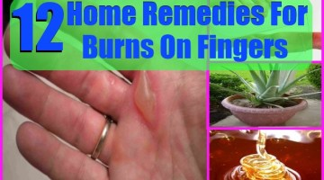 Home Remedies For Burns On Fingers