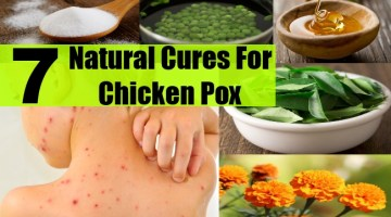Cures For Chicken Pox