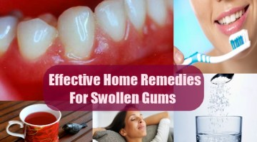 Effective And Simple Home Remedies For Swollen Gums