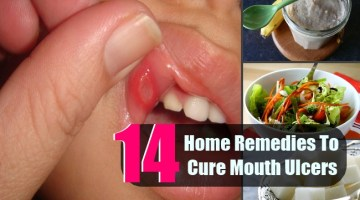 14 Top Home Remedies To Cure Mouth Ulcers