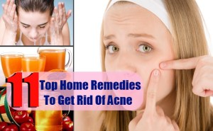 8 Top Simple Home Remedies To Get Rid Of Acne